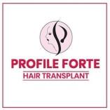 Profile Forte