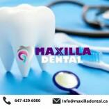 Maxilla Dental