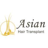 Asian Hair Transplant