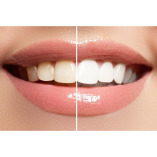 East Wind Dental Care (Hillsboro Dentist)